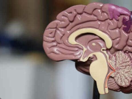 A plastic model of the human brain.